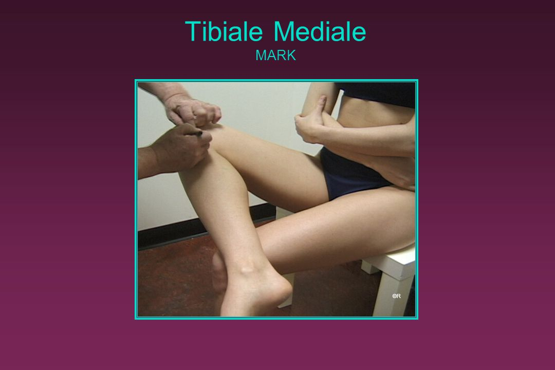 Tibiale Mediale MARK ©R. Release and relocate with the nail of your left index finger. Mark with a short line in the transverse plane.