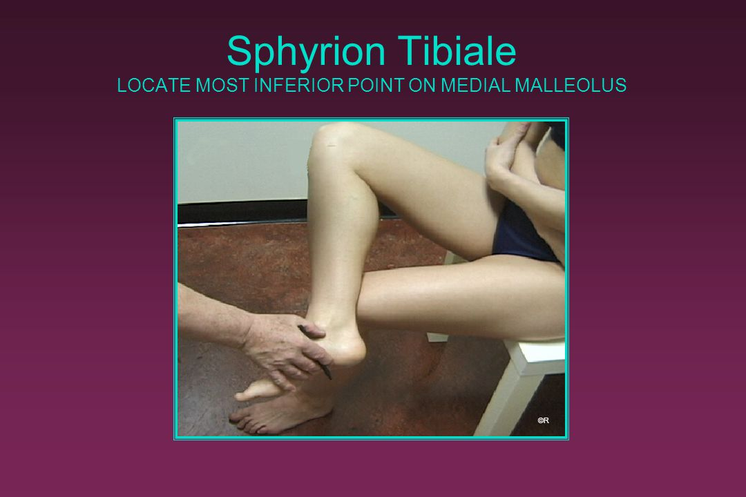 Sphyrion Tibiale LOCATE MOST INFERIOR POINT ON MEDIAL MALLEOLUS