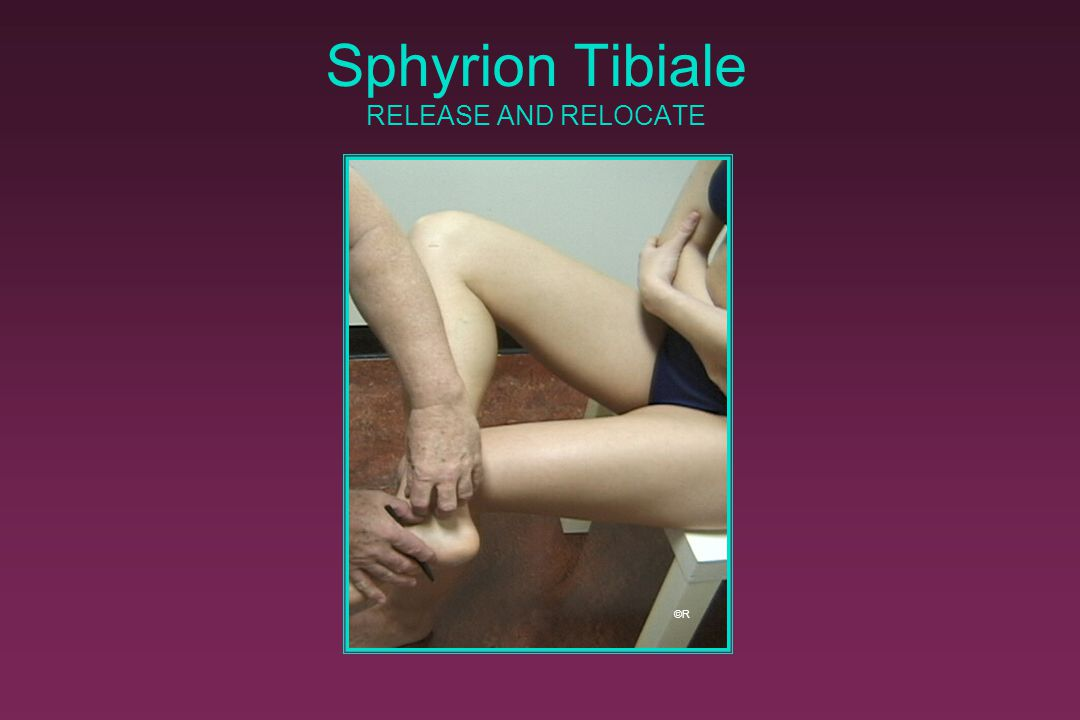 Sphyrion Tibiale RELEASE AND RELOCATE