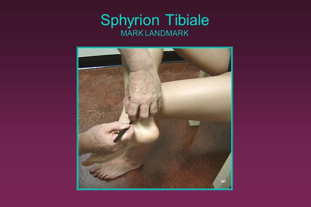 Sphyrion Tibiale MARK LANDMARK