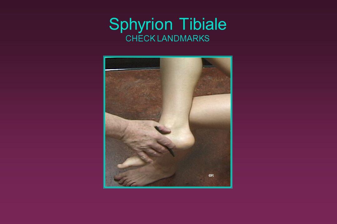 Sphyrion Tibiale CHECK LANDMARKS