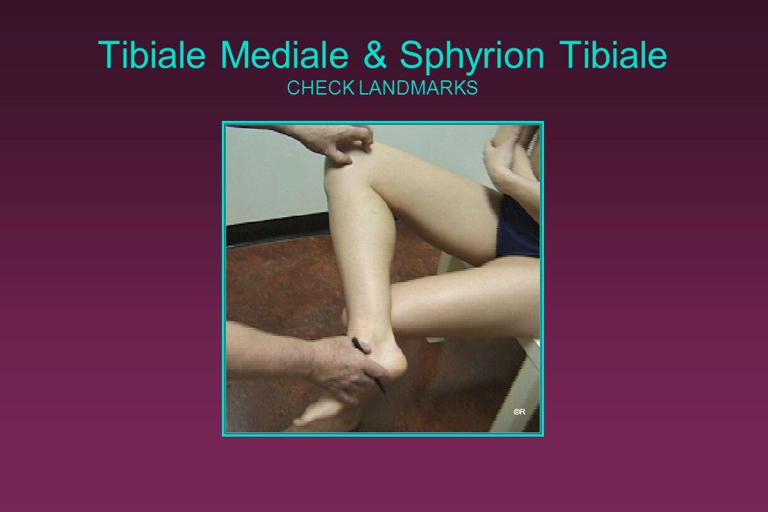 Tibiale Mediale & Sphyrion Tibiale CHECK LANDMARKS