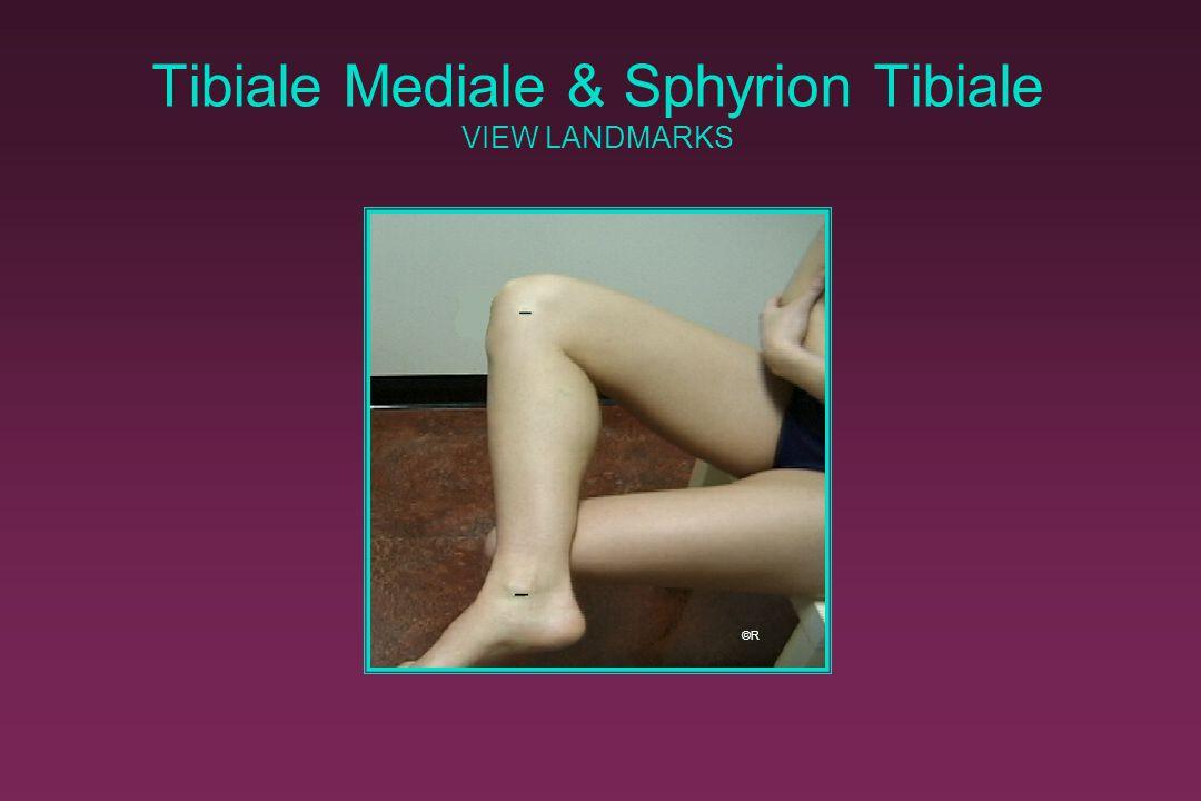 Tibiale Mediale & Sphyrion Tibiale VIEW LANDMARKS