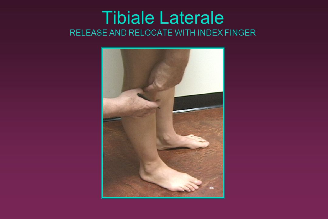 Tibiale Laterale RELEASE AND RELOCATE WITH INDEX FINGER