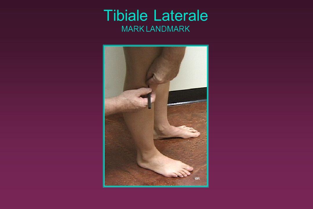 Tibiale Laterale MARK LANDMARK