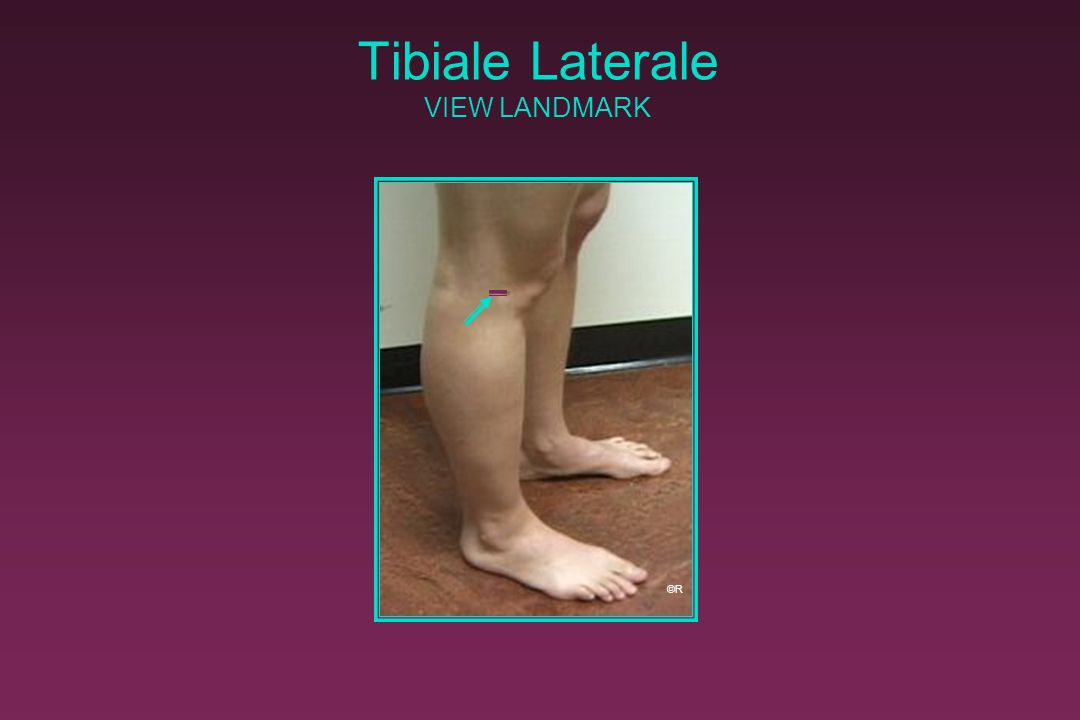 Tibiale Laterale VIEW LANDMARK