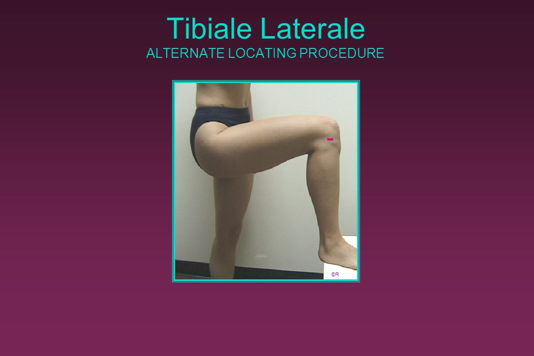 Tibiale Laterale ALTERNATE LOCATING PROCEDURE