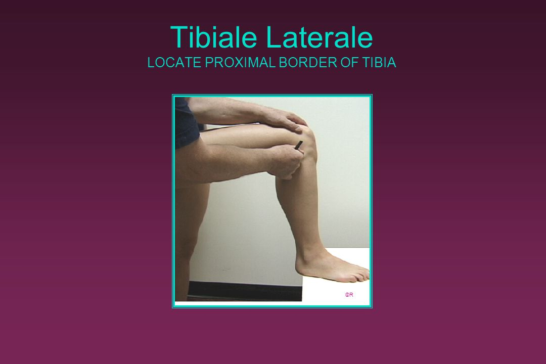 Tibiale Laterale LOCATE PROXIMAL BORDER OF TIBIA
