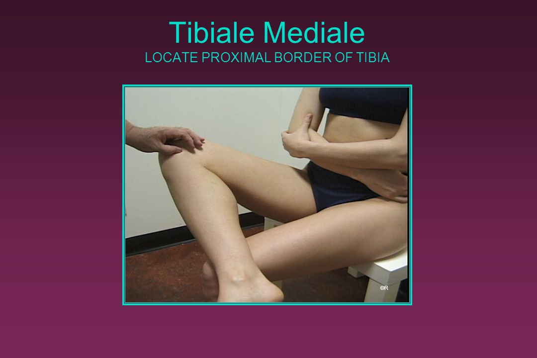 Tibiale Mediale LOCATE PROXIMAL BORDER OF TIBIA