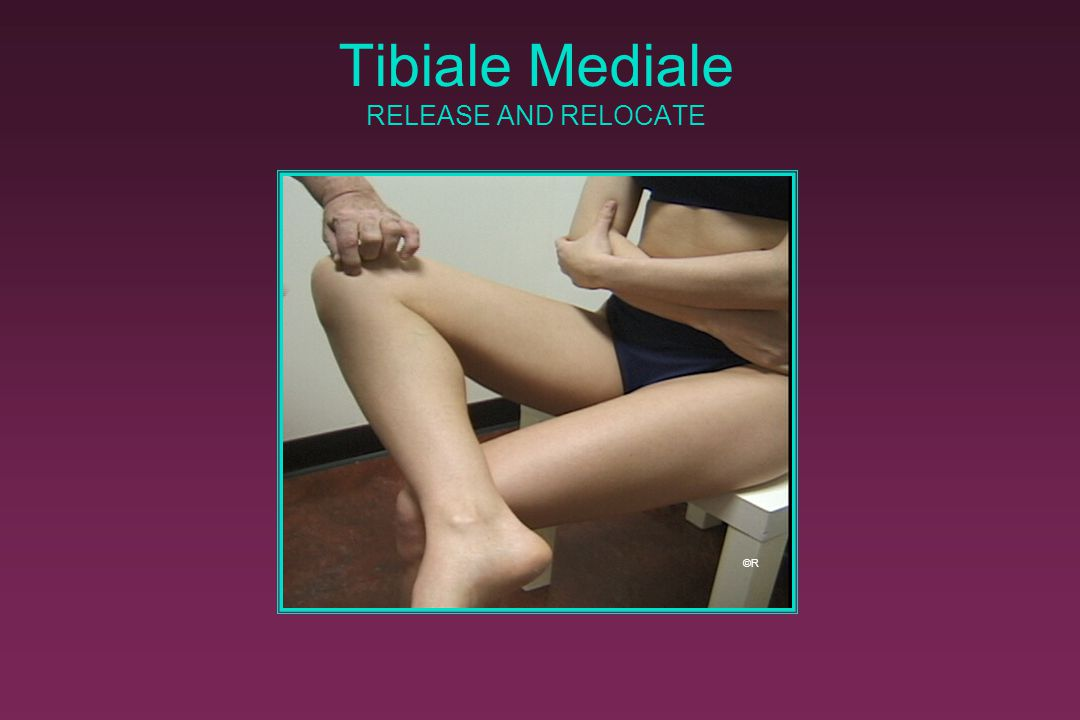 Tibiale Mediale RELEASE AND RELOCATE
