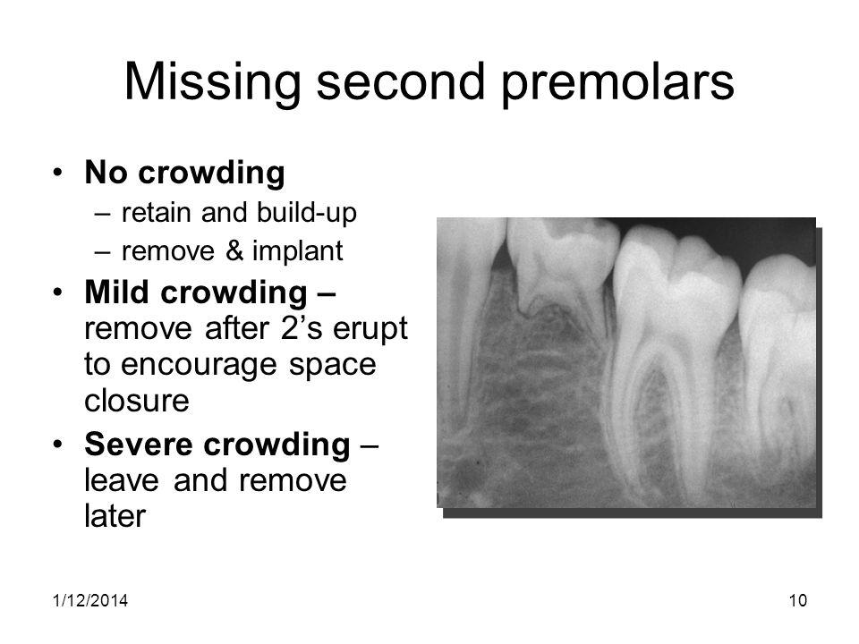 Missing second premolars