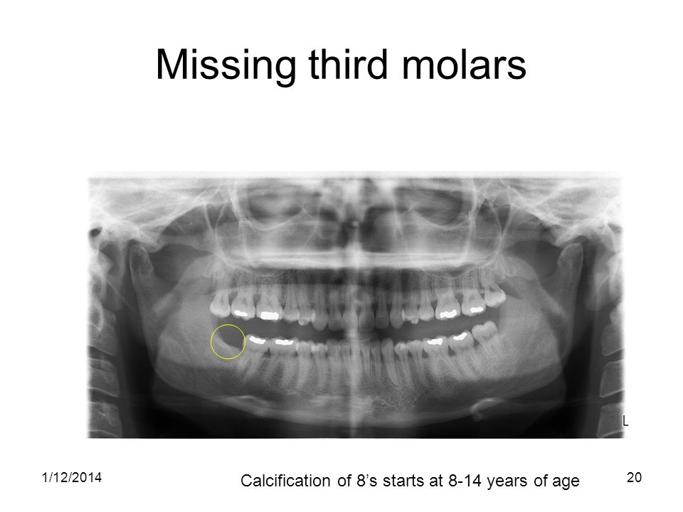 Missing third molars Calcification of 8's starts at 8-14 years of age