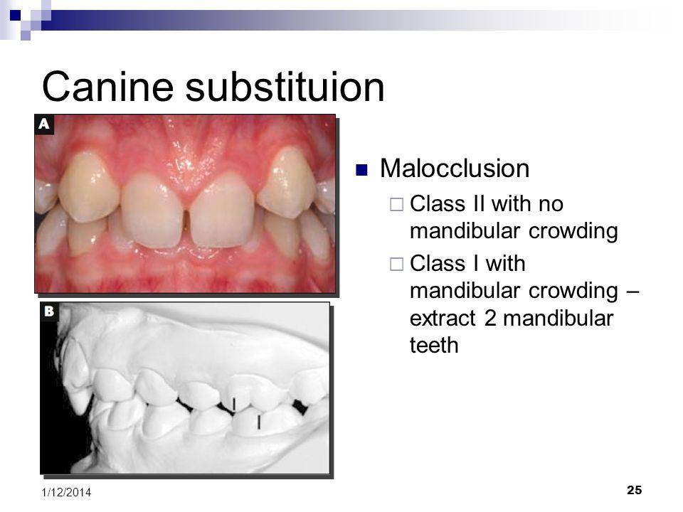 Canine substituion Malocclusion Class II with no mandibular crowding