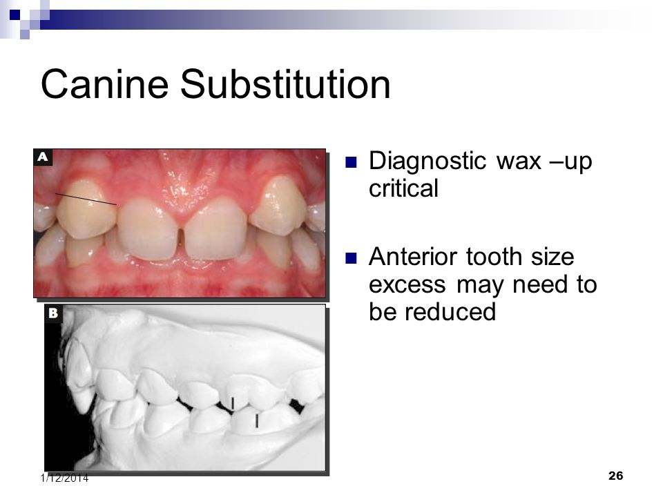 Canine Substitution Diagnostic wax –up critical