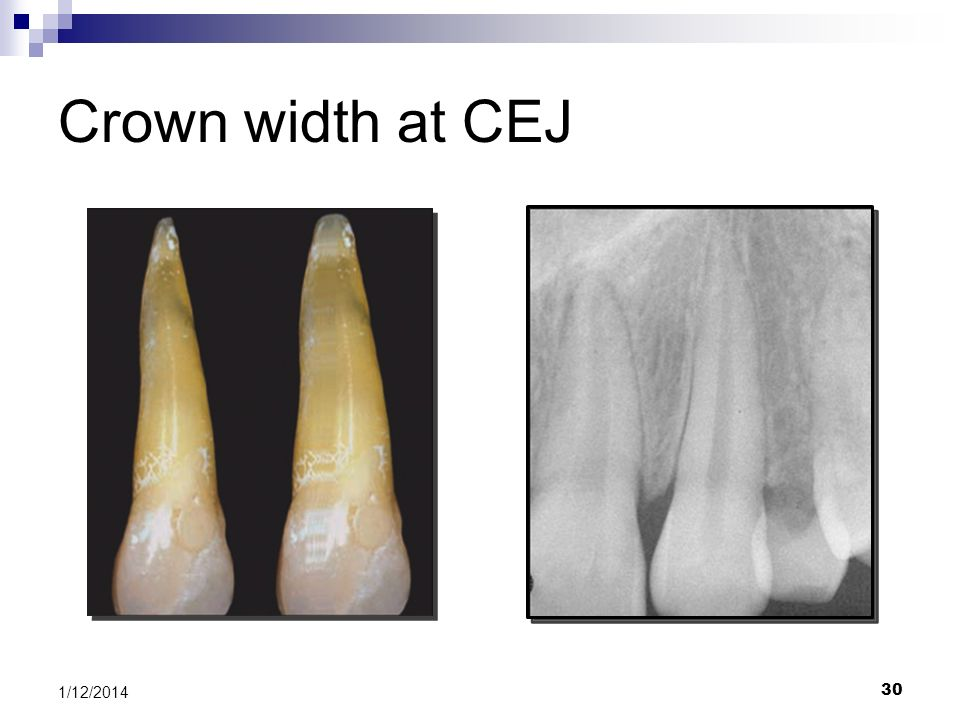 Crown width at CEJ Pre-treatment periapical radiograph