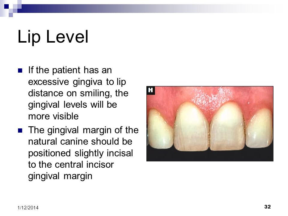 Lip Level If the patient has an excessive gingiva to lip distance on smiling, the gingival levels will be more visible.