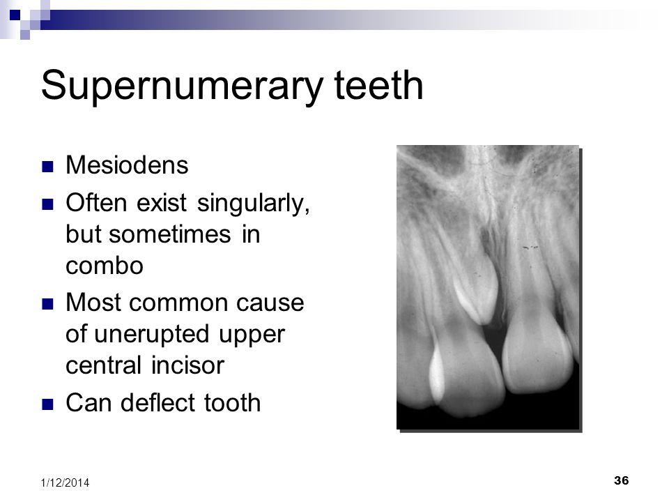 Supernumerary teeth Mesiodens