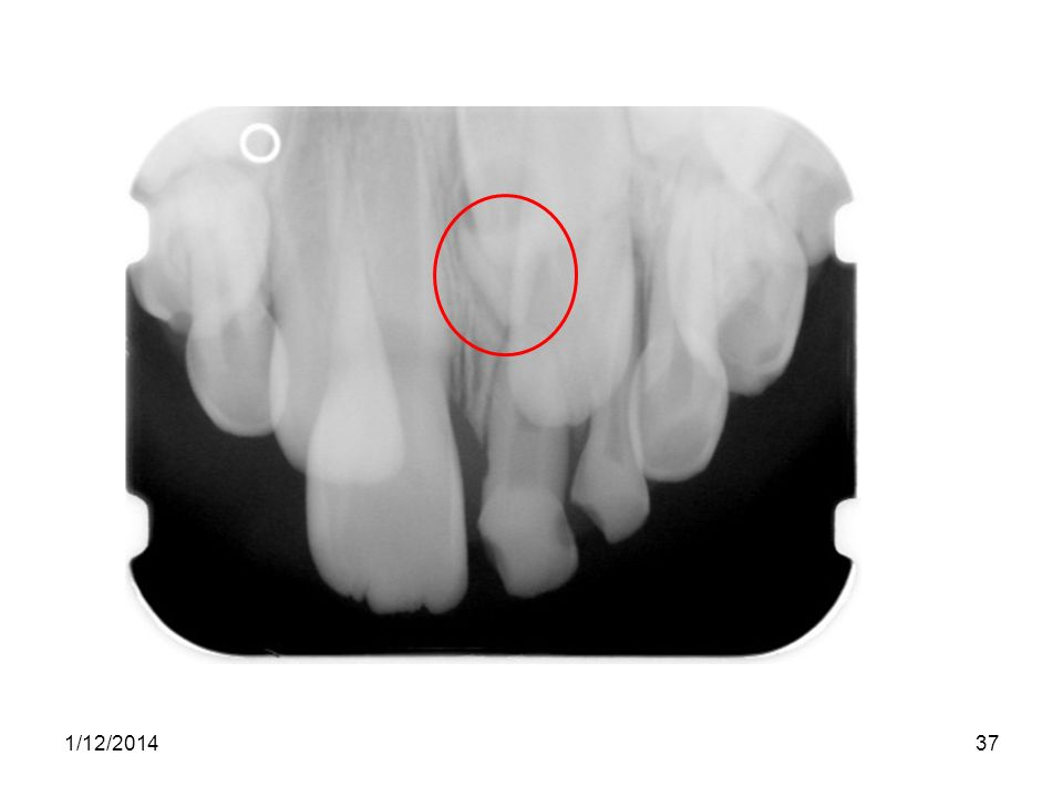 The problem here is that the lateral incisor is erupting ahead of the central due to the mesiodens