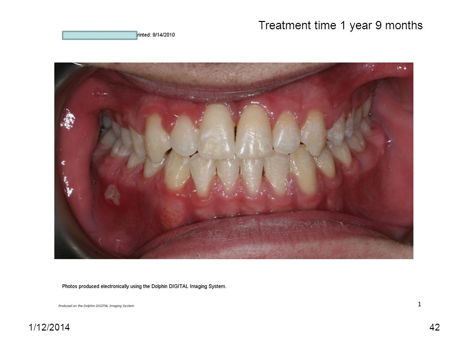 Treatment time 1 year 9 months