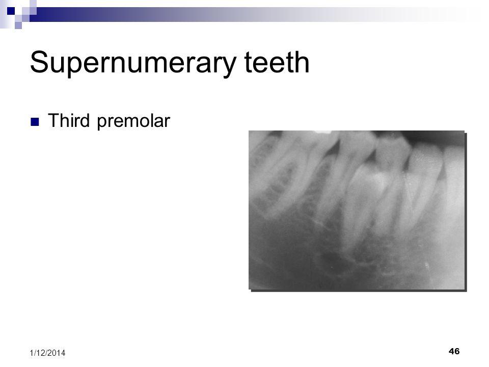 Supernumerary teeth Third premolar 3/25/2017