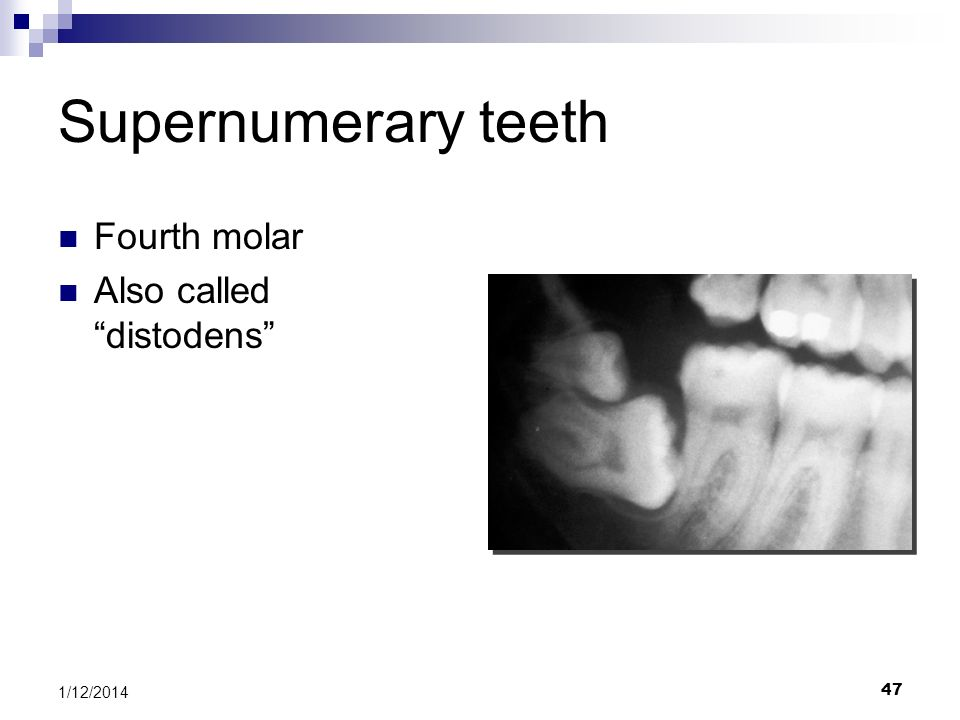 Supernumerary teeth Fourth molar Also called distodens 3/25/2017