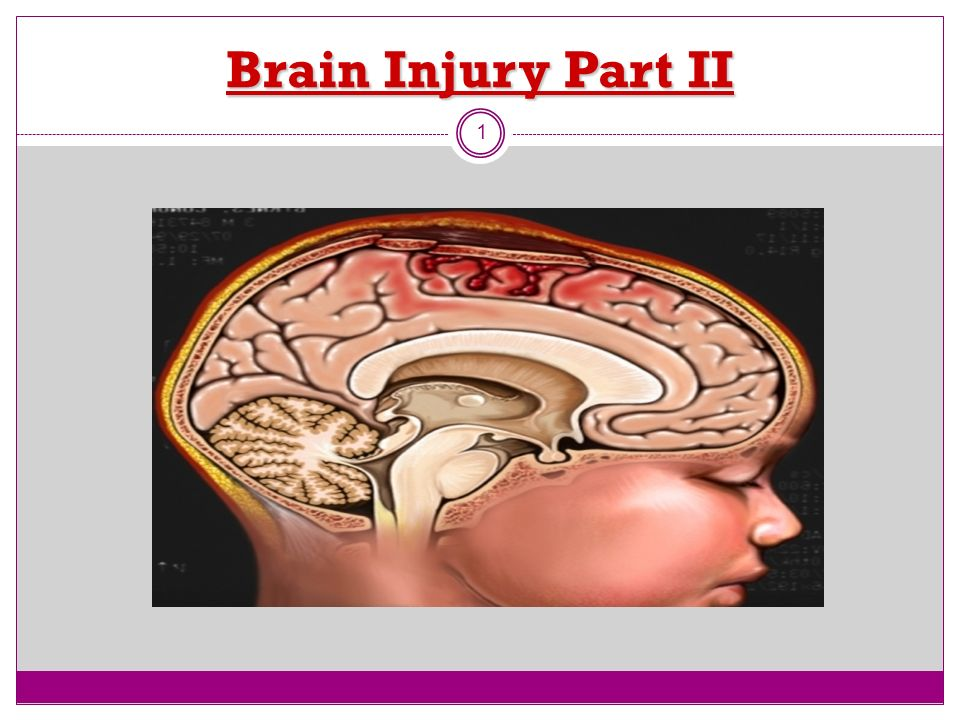 Brain Injury Part II