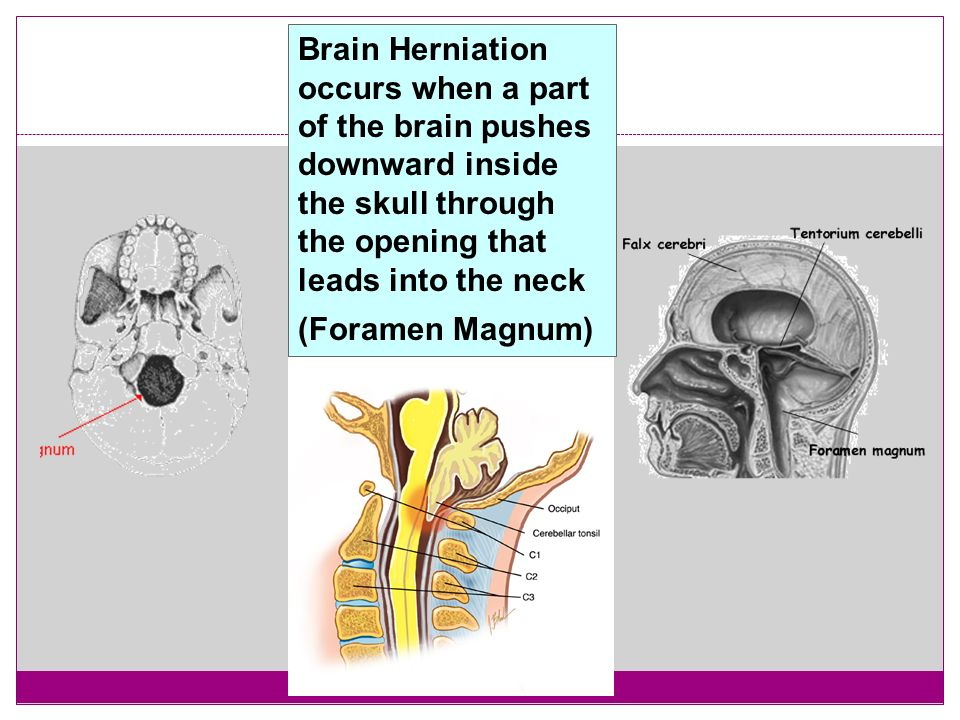 Brain Herniation occurs when a part of the brain pushes downward inside the skull through the opening that leads into the neck