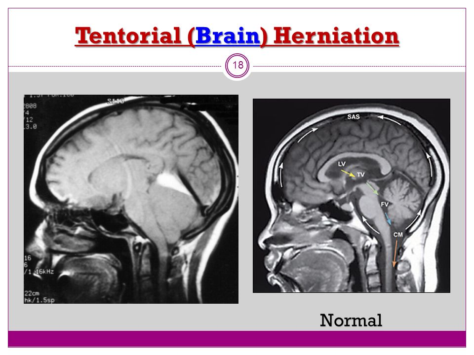 Tentorial (Brain) Herniation