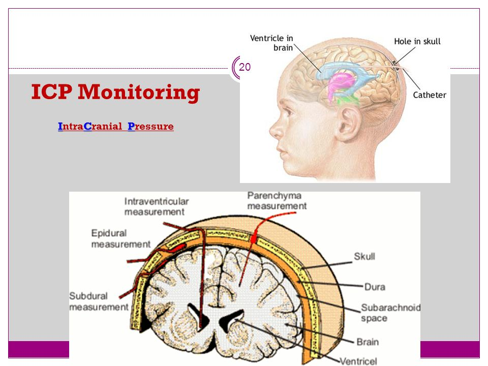 ICP Monitoring IntraCranial Pressure