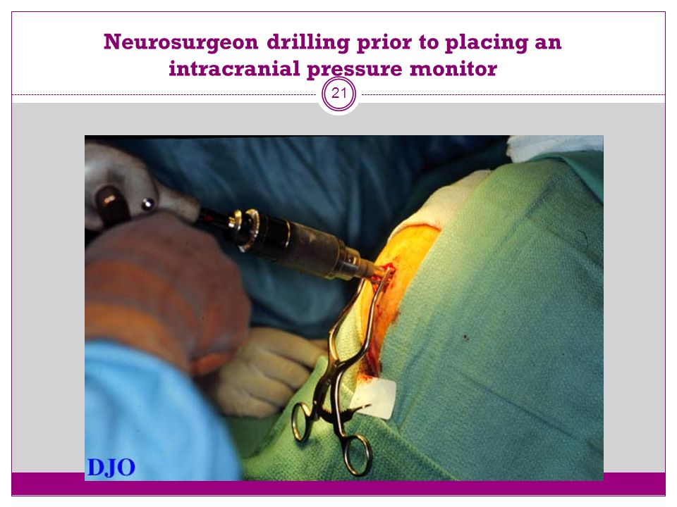 Neurosurgeon drilling prior to placing an intracranial pressure monitor
