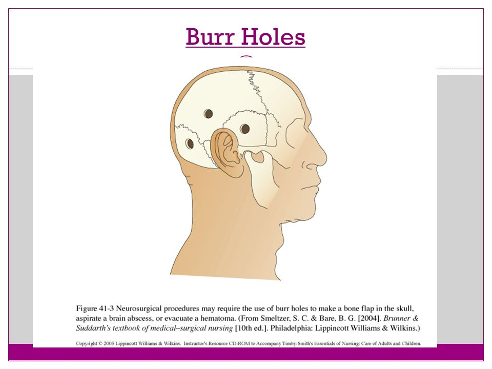 Brain Injury Part Ii Ppt Video Online Download