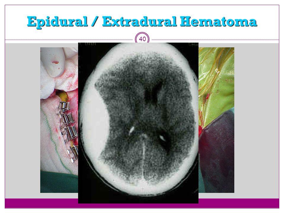 Epidural / Extradural Hematoma