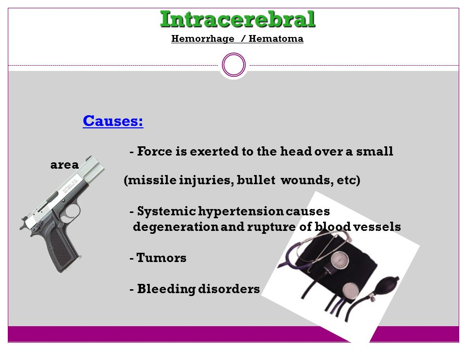 Intracerebral Hemorrhage / Hematoma