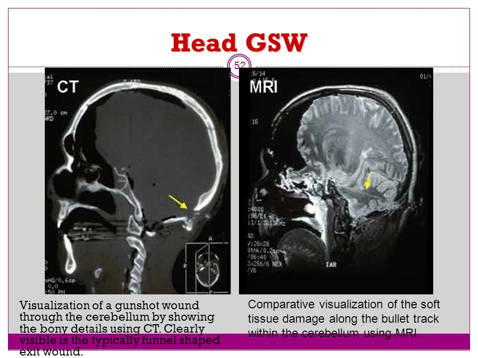 Head GSWComparative visualization of the soft tissue damage along the bullet track within the cerebellum using MRI.