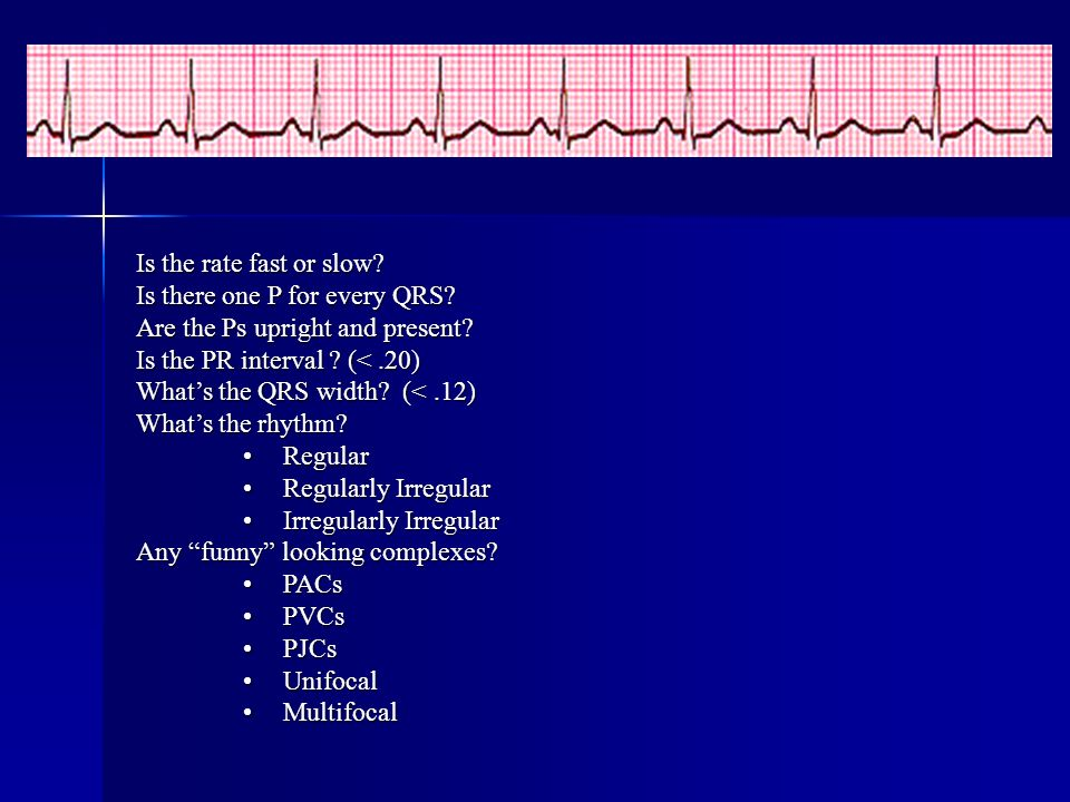 Is the rate fast or slow Is there one P for every QRS Are the Ps upright and present Is the PR interval (< .20)