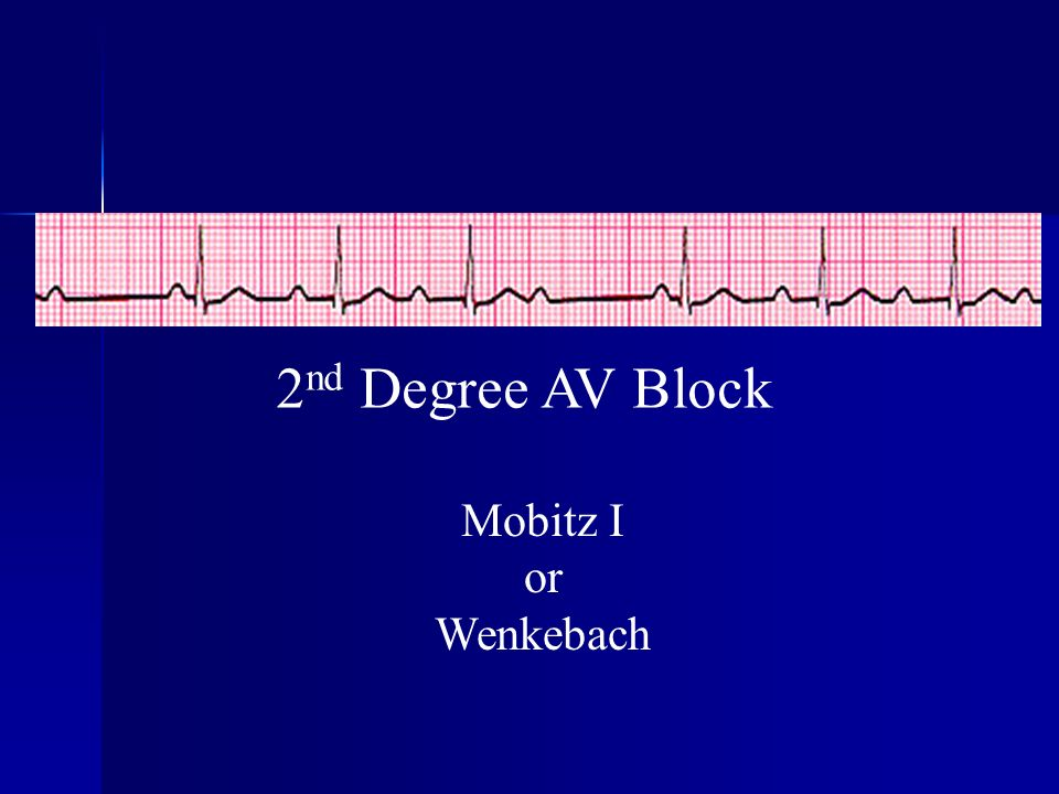 2nd Degree AV Block Mobitz I or Wenkebach