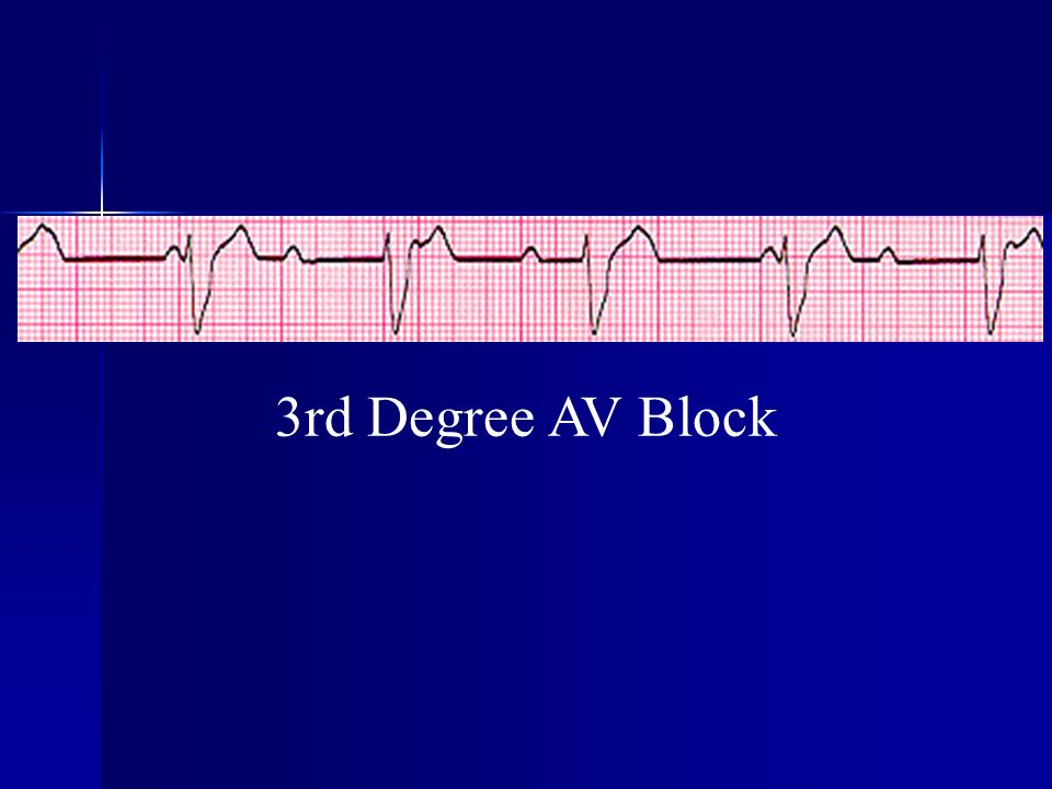 3rd Degree AV Block