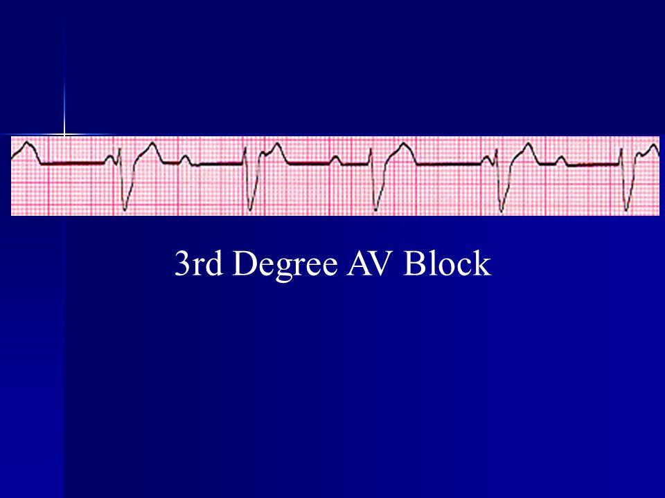 3rd Degree AV Block