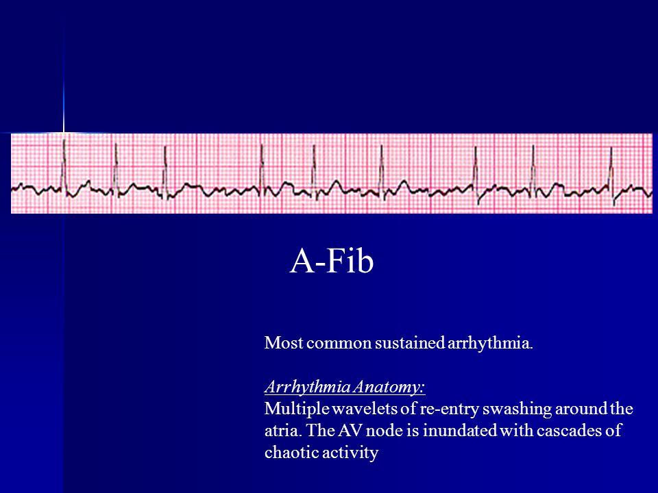 A-Fib Most common sustained arrhythmia. Arrhythmia Anatomy: