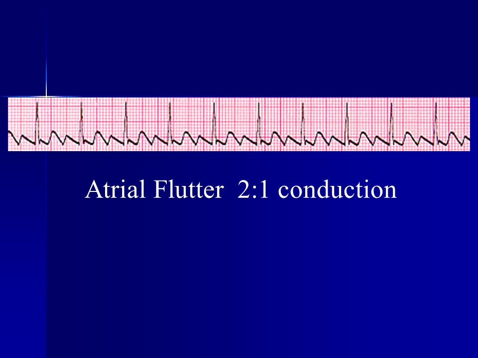 Atrial Flutter 2:1 conduction