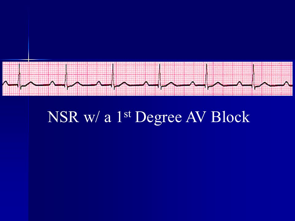 NSR w/ a 1st Degree AV Block