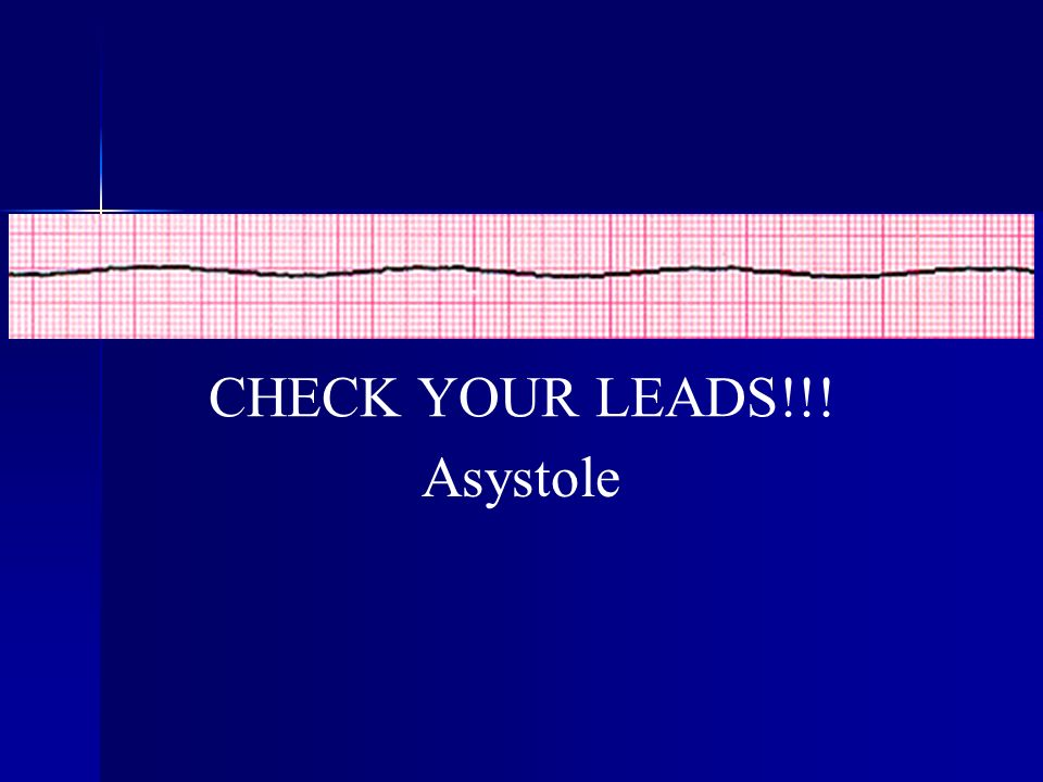 CHECK YOUR LEADS!!! Asystole