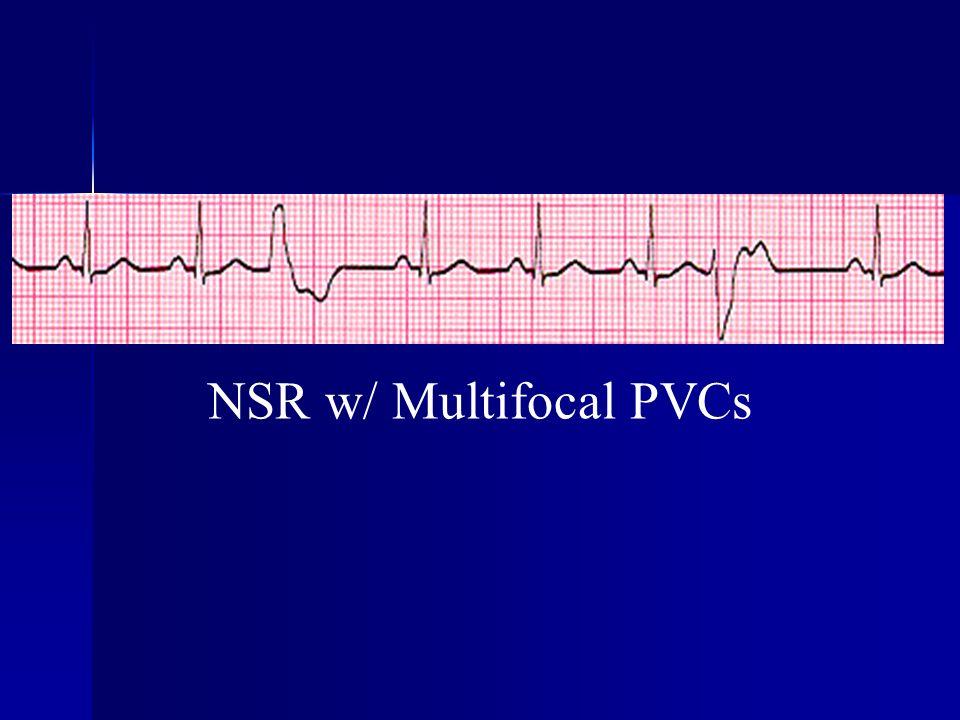 NSR w/ Multifocal PVCs