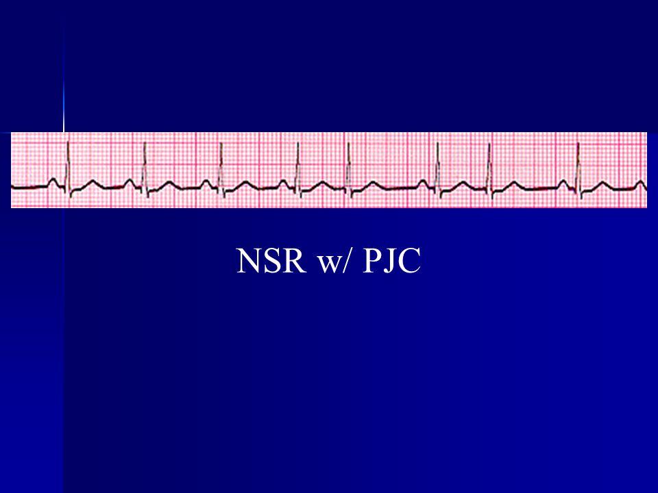 NSR w/ PJC