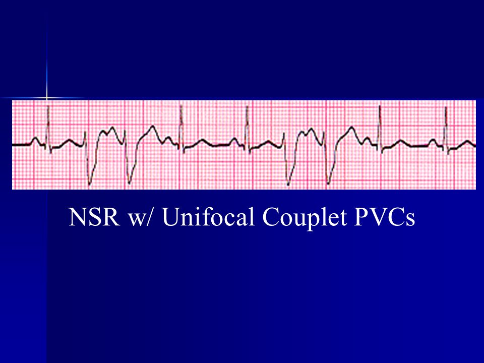 NSR w/ Unifocal Couplet PVCs