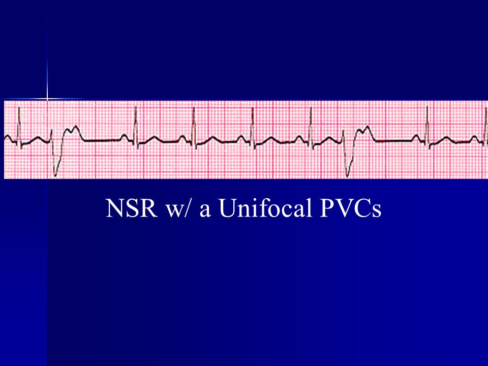 NSR w/ a Unifocal PVCs