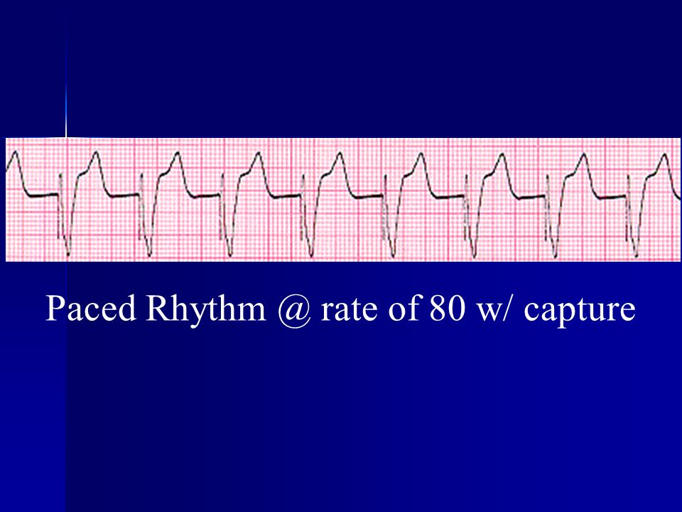 Paced Rhythm @ rate of 80 w/ capture