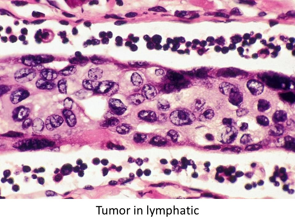 Tumor in lymphatic
