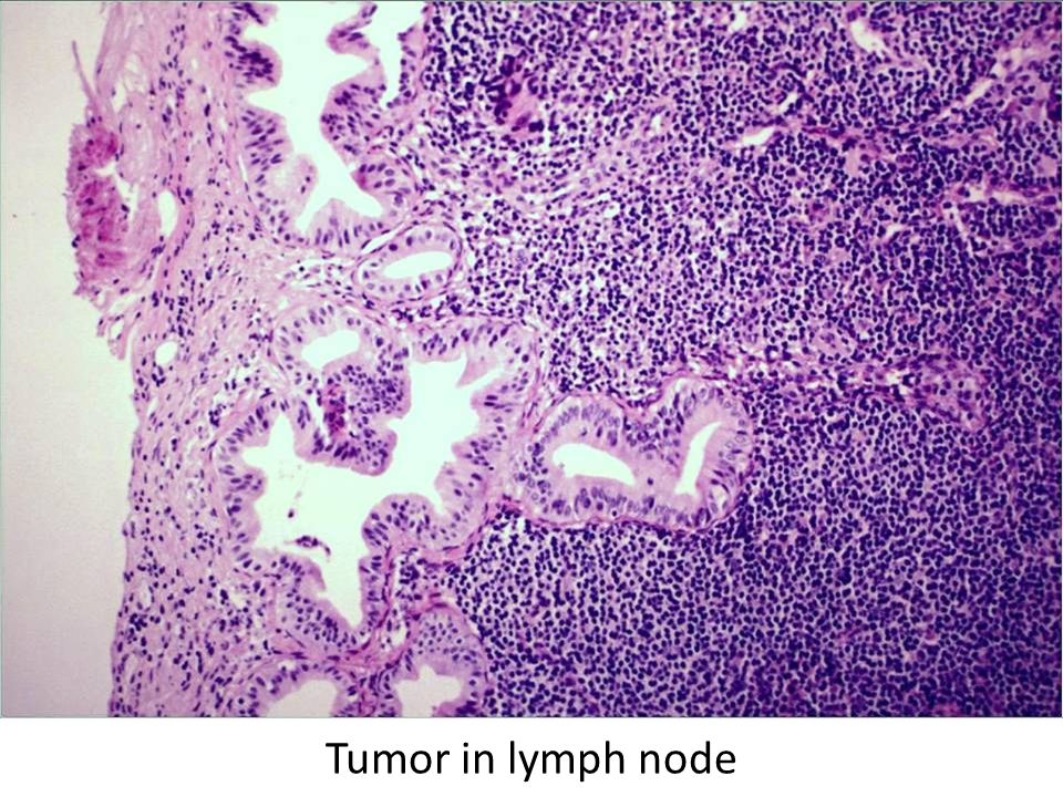 Tumor in lymph node