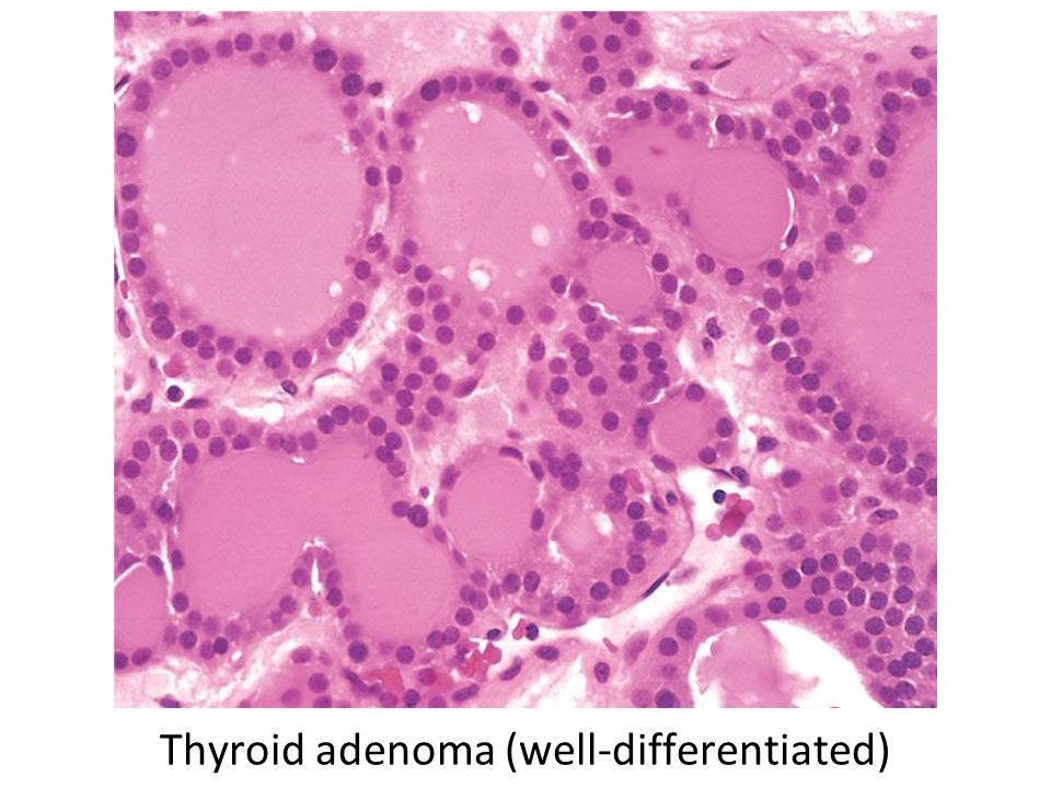 Thyroid adenoma (well-differentiated)